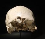 Cráneo 4